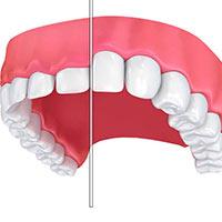 Dental Treatment 1: Gum Recontouring