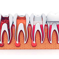 Emergency Root Canal Treatment: Hoppers Crossing