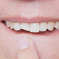 Chipped Teeth-how can get a Slight breakages of my tooth fixed - Hoppers Crossing Dentist