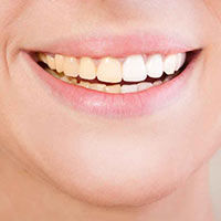 Discoloured Teeth-Dull teeth-Discoloration-Hoppers Crossing dentists